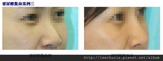 玻尿酸隆鼻2.jpg
