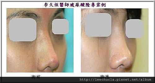 李久恆醫師-打玻尿酸隆鼻案例照片10.jpg