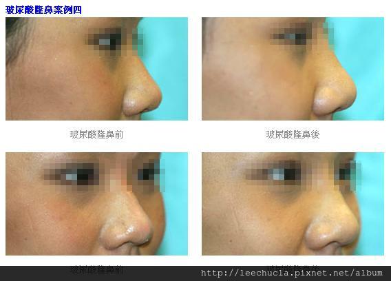 玻尿酸隆鼻3.jpg