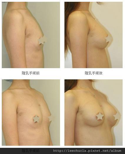隆乳手術6.jpg