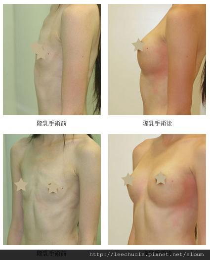 隆乳手術5.jpg