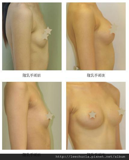隆乳手術4.jpg