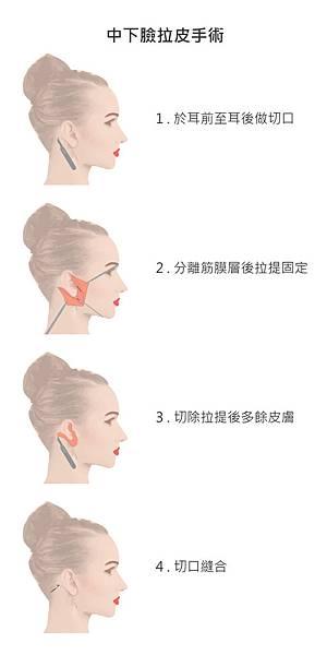 中下臉拉皮手術
