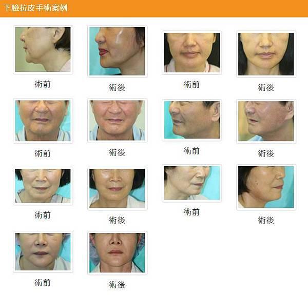 下臉拉皮手術案例