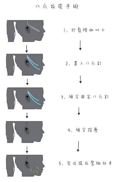 八爪拉皮手術