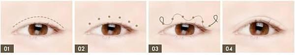 韓式6D雙眼皮手術1.jpg