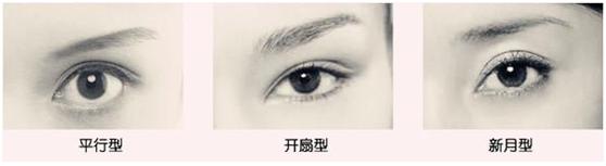 韓式6D雙眼皮手術2.jpg