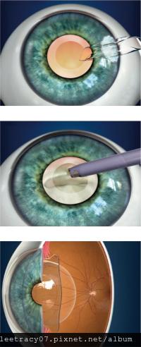 超高度近視者的福音~ICL™植入性隱形眼鏡