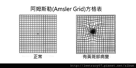 Amsler-Grid-2