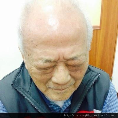 老年性眼瞼下垂-1