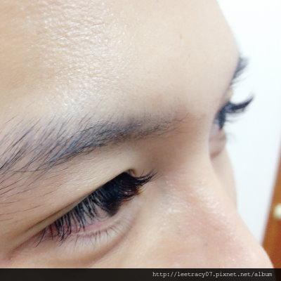 視保眼科接睫毛角膜破皮