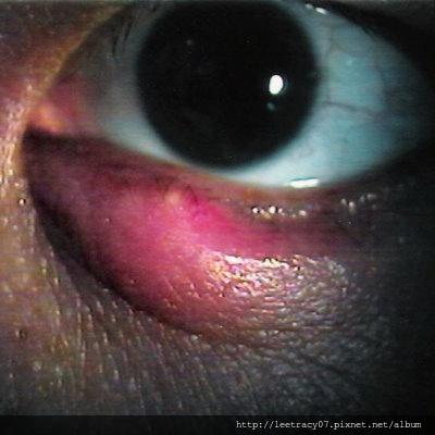 麥粒腫-視保眼科
