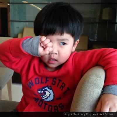 視保眼科眼科衛教眼睛癢揉眼睛-過敏性結膜炎1024x768