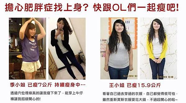 埋線瘦身減肥