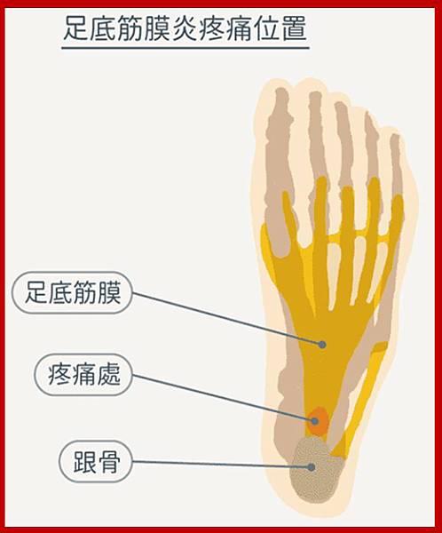足底筋膜炎位置.jpg