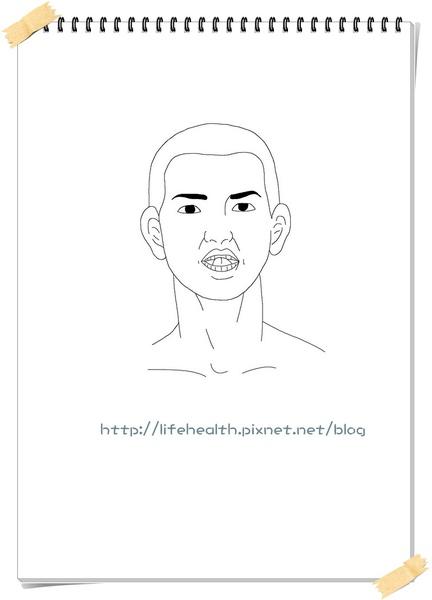 4.腦血管疾病、中風.jpg
