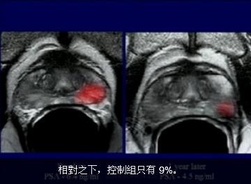 攝護線癌 照影