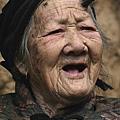 百歲老人長「犄角」