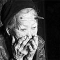 百歲老人頭上長出6釐米長犄角(圖)