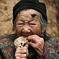 百歲老人頭上長「犄角」