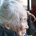 廣東湛江95歲壽星額頭長12釐米「犄角」