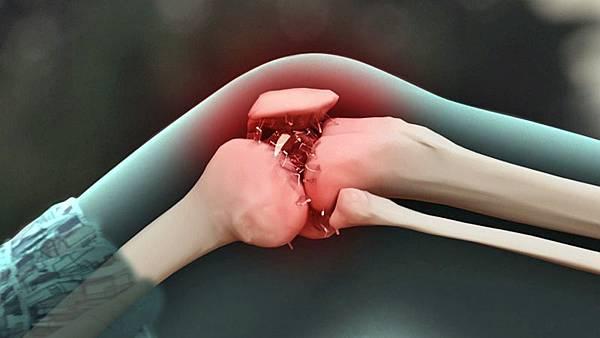 身體的關節響是怎麼回事