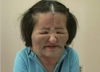 韓國整型失拜的電風扇阿姨 (10)