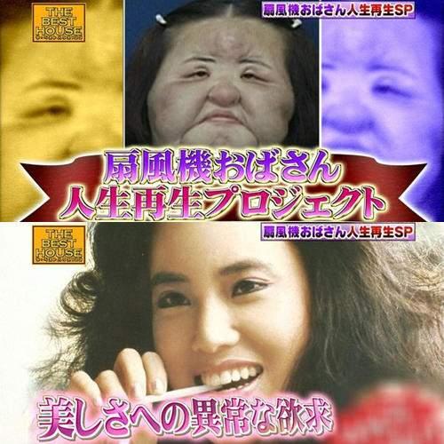 韓國整型失拜的電風扇阿姨