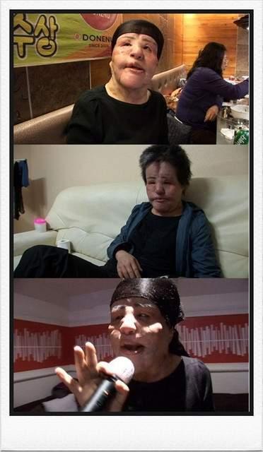 韓國整型失拜的電風扇阿姨 (6)