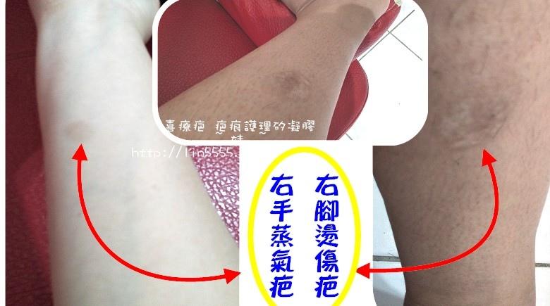 喜療疤 疤痕護理矽凝膠4.jpg