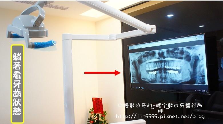 矯正牙齒隱形矯正中壢數位牙科-環宇數位牙醫診所8.jpg