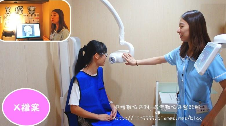 矯正牙齒隱形矯正中壢數位牙科-環宇數位牙醫診所9.jpg
