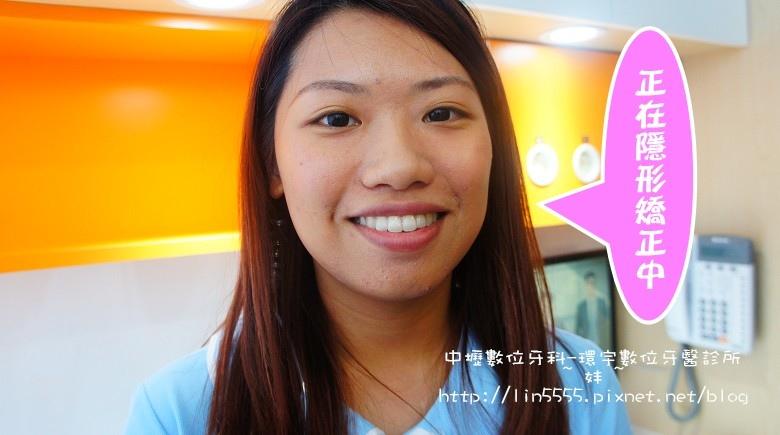矯正牙齒隱形矯正中壢數位牙科-環宇數位牙醫診所14.jpg
