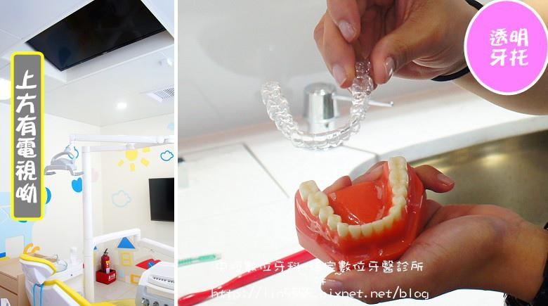 矯正牙齒隱形矯正中壢數位牙科-環宇數位牙醫診所15.jpg