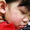20120616-Yuki 第一次得蕁麻疹