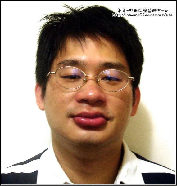 腫眼睛香腸嘴的老公.jpg