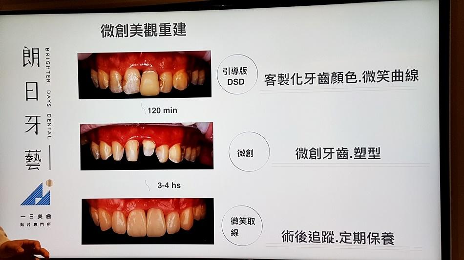 台中牙醫體驗-斷牙怎麼辦朗日牙藝美學牙醫快速補牙快速裝全瓷冠