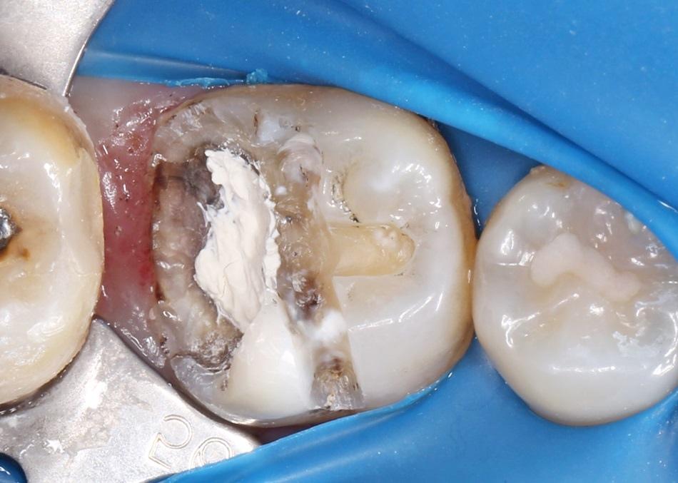 台中牙醫分享-斷牙怎麼辦朗日牙藝美學牙醫快速裝全瓷冠牙齒崩壞免植牙