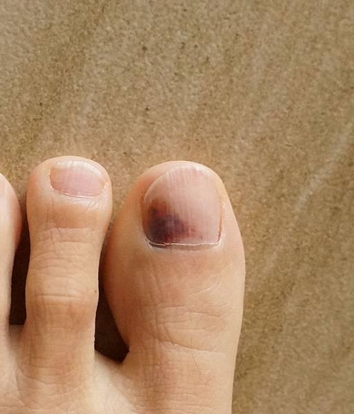 左腳拇指烏青