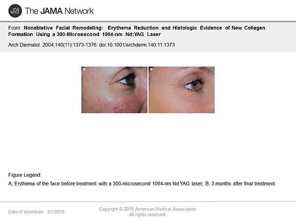 淨膚雷射讓證據說話1.jpg