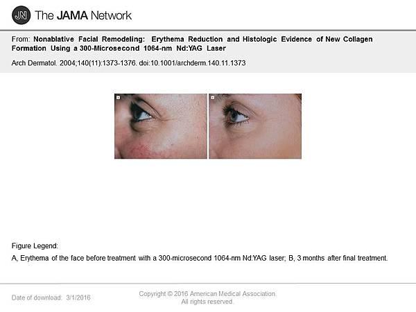 淨膚雷射讓證據說話2.jpg