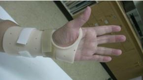 腕隧道症候群患者使用之豎腕副木.jpg