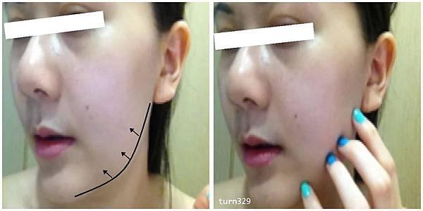 正顎手術13-3.jpg