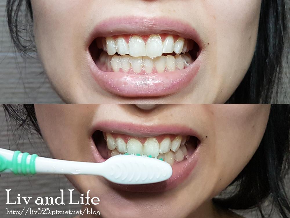普麗斯牙齒貼片16.jpg