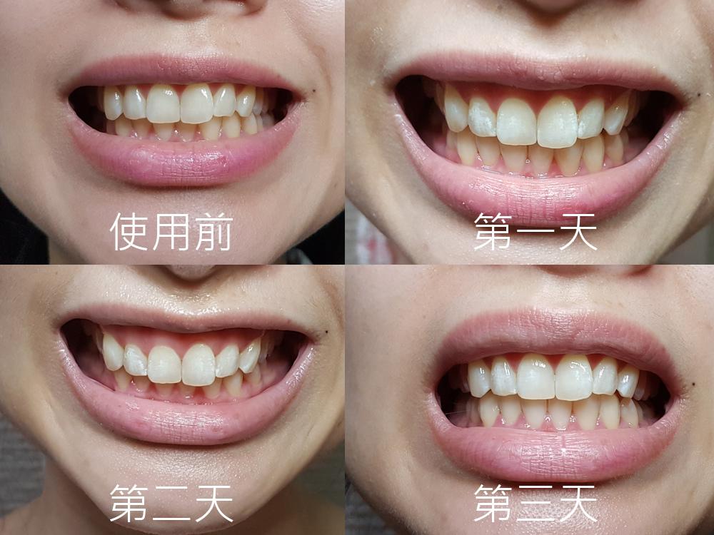 普麗斯牙齒貼片18.jpg