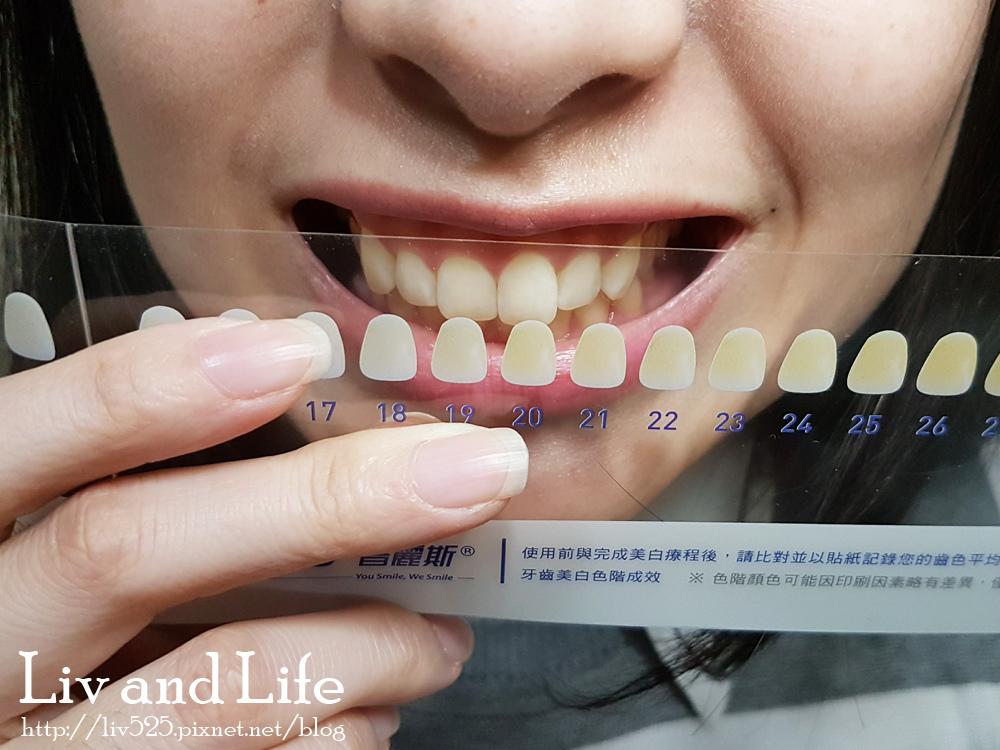 普麗斯牙齒貼片7.jpg