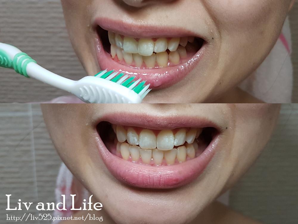 普麗斯牙齒貼片15.jpg