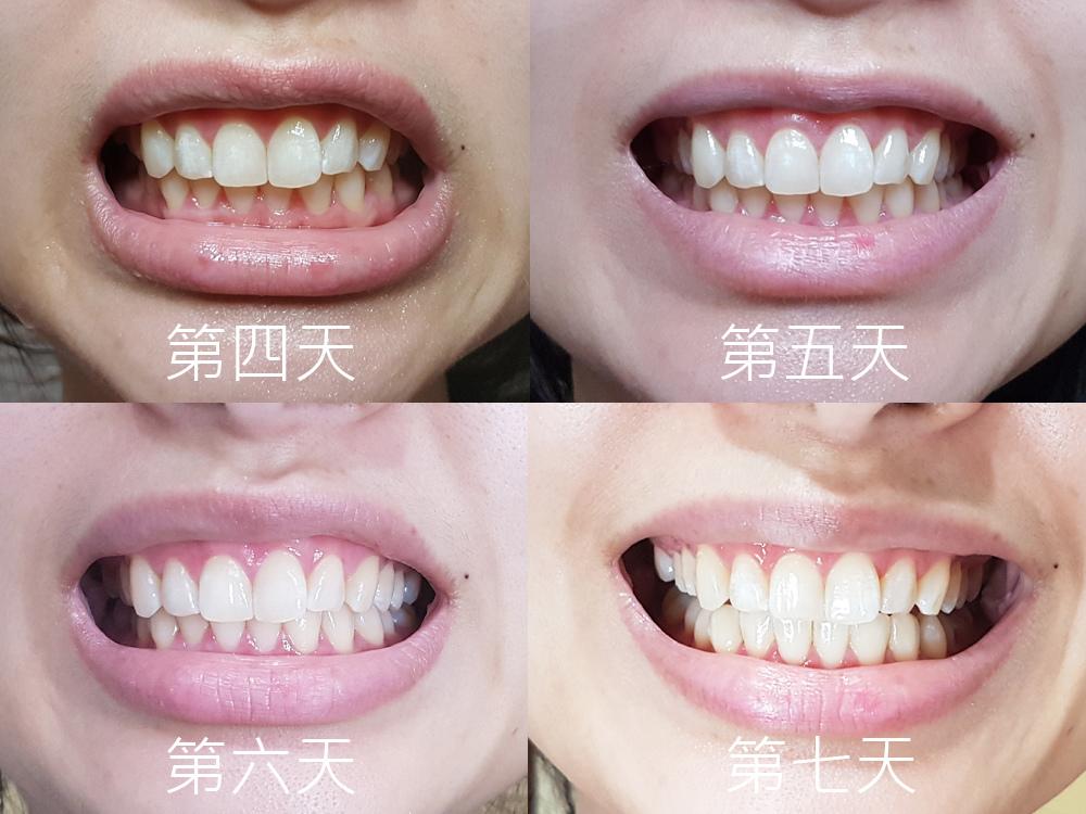 普麗斯牙齒貼片19.jpg
