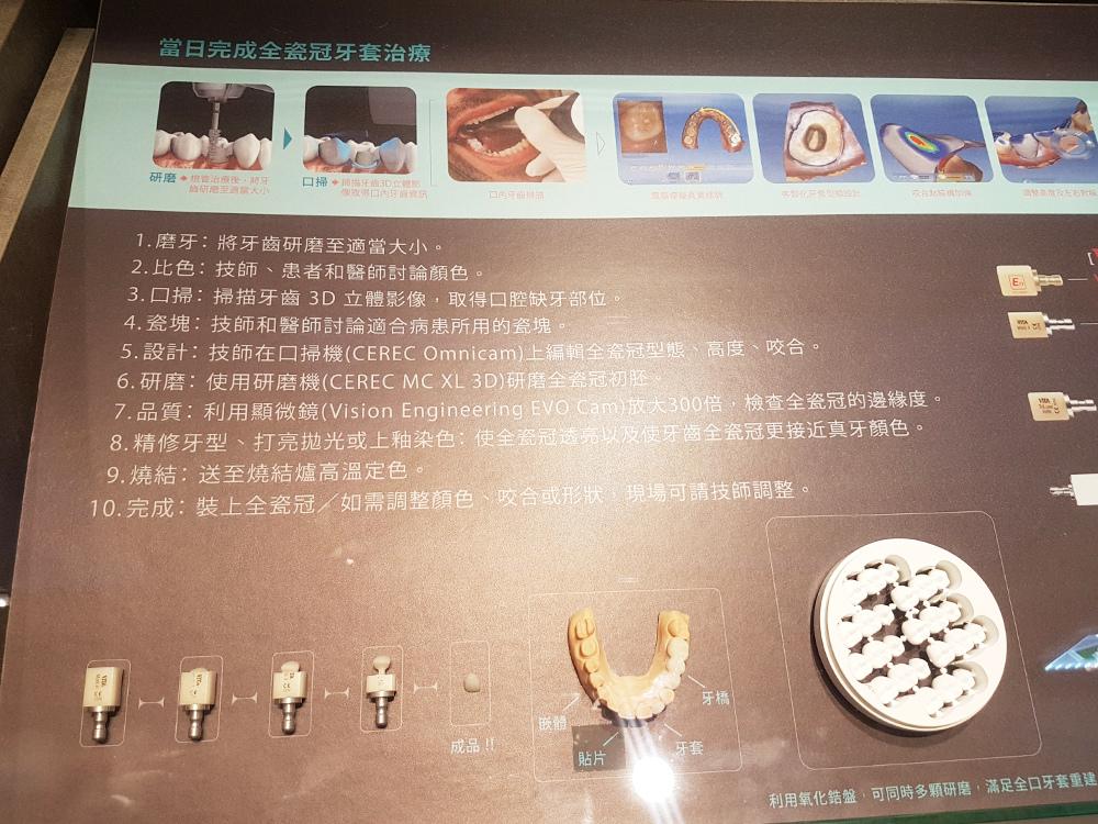 悅庭牙醫全瓷冠瓷牙貼片導引式植牙微笑曲線12.jpg