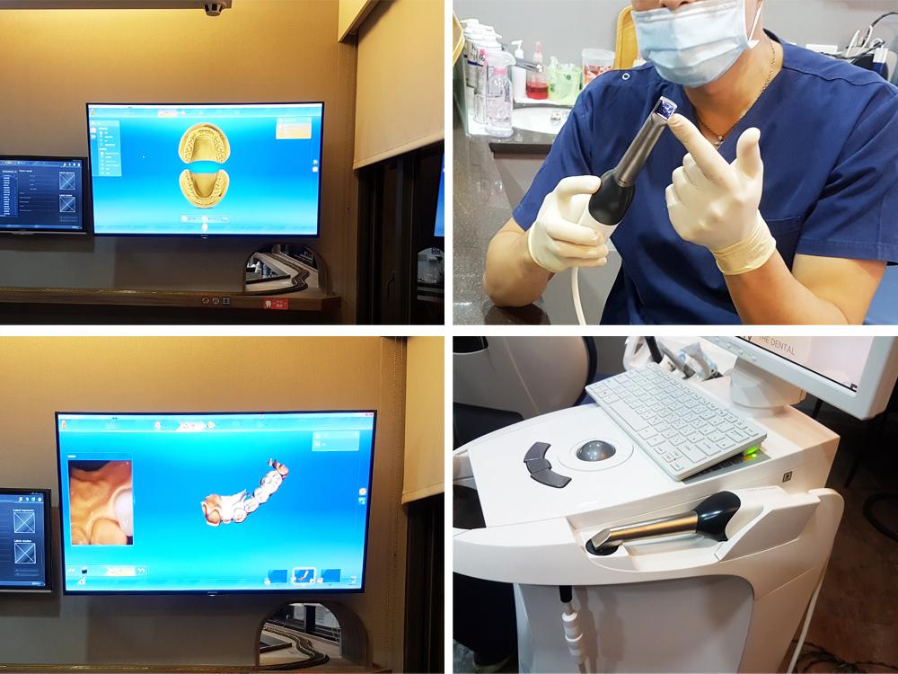 悅庭牙醫全瓷冠瓷牙貼片導引式植牙微笑曲線21.jpg